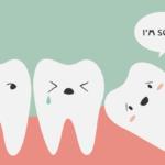 3 Lưu ý về Nhổ răng khôn – Răng 8 bạn nên biết
