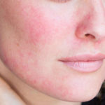 Trẻ hóa da bằng laser và những biến chứng nguy hiểm